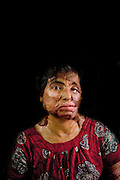"Narayanganj, Bangladesh - <br /> <br /> Acid Attack<br /> <br /> Acid throwing, also called an acid attack or vitriolage, is a form of violent assault. It is defined as the act of throwing acid onto the body of a person ""with the intention to disfigure, maim, torture, or kill.'Äù Perpetrators of these attacks throw acid at their victims, usually at their faces, burning them, and damaging skin tissue, often exposing and sometimes dissolving the bones. The long term consequences of these attacks include blindness and permanent scarring of the face and body, along with far-reaching social, psychological, and economic difficulties. These attacks are most common in Cambodia, Afghanistan, India, Bangladesh, Pakistan. Globally, at least 1500 people in 20 countries are attacked in this way yearly, 80% of whom are female and somewhere between 40% and 70% under 18 years of age.<br /> <br /> Acid violence is a particularly vicious and damaging form of assualt in Bangladesh where acid is thrown in people' faces. The overwhelming majority of the victims are women, and many of them are below 18 years of age. The victims are attacked for many reasons. In some cases it is because a young girl or women has spurned the sexual advances of a male or either she or her parents have rejected a proposal of marriage. Recently, however, there have been acid attacks on children, older women and also men. These attacks are often the result of family and land dispute, dowry demands or a desire for revenge.<br /> <br /> But the scars left by acid are not just skin deep. In addition to the inevitable psychological trauma, some survivors also face social isolation and ostracism that further damage their self-esteem and seriously undermine their professional and personal futures. Women who have survived acid attacks have great difficulty in finding work and, if unmarried (as many victims tend to be), have very little chance of ever getting married. In a country like Bangladesh this has serious social and economic consequences.<br /> <br /> Nitric or s"