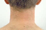 back of a man's neck