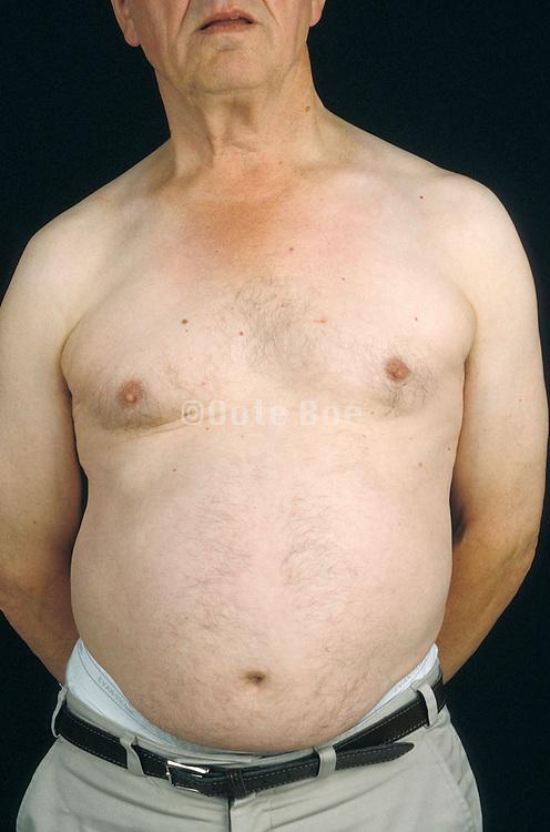 belly of an elderly man