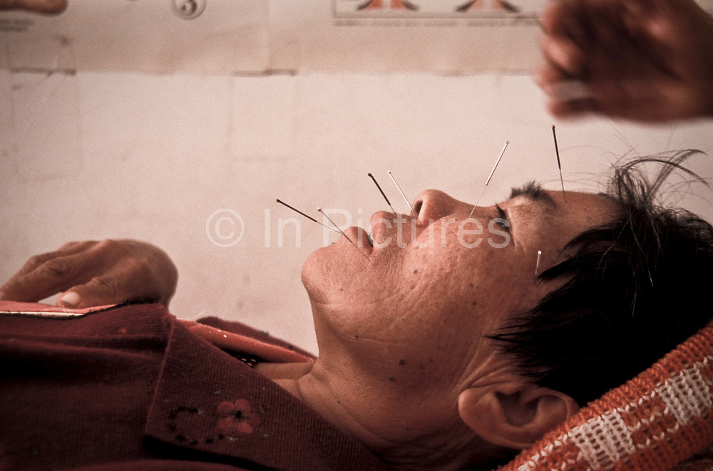 Liang Xiu Fen has suffered a stroke causing partial paralysis. She is being administered with Acupuncture and Cupping to attempt to reverse the symptoms of the paralysis,  Xiao Meng Yang town, Yunnan province, China.