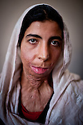 Zahra, a survivor of self-immolation, photographed at a women's center in Herat. Zahra set herself on fire to protest an arranged marriage to a much older man.