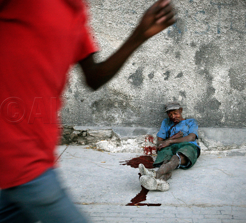 A man lays bleeding on the side of the street after being struck by a vehicle on a along a chaotic main street in downtown Port-au-Prince on March 3. 2010...