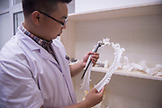 CHANGCHUN, CHINA - JUNE 23: (CHINA OUT)<br /> <br /> Man Recovered With 3D Printed Cervical Vertebra <br /> <br />  A 3D printed medical implant is seen at the Second Hospital of Jilin University on June 23, 2015 in Changchun, Jilin Province of China. 66-year-old Fu Zuohua, who has cervical vertebra hyperosteogeny, received a surgery with a 3D printed cervical vertebra implant made of titanium on June 19, and he recovered to a better condition. <br /> ©Exclusivepix Media
