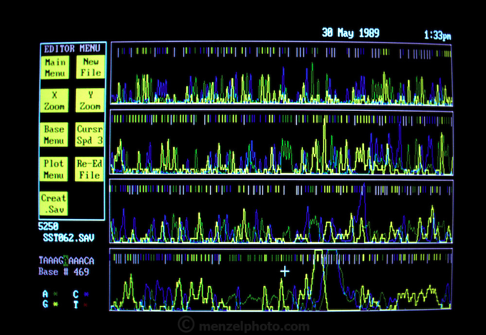 Human Genome Project: Cal Tech, Lee Hood Lab. Computer monitor showing DNA Sequencing Gels: Computer Assisted.  (1989)