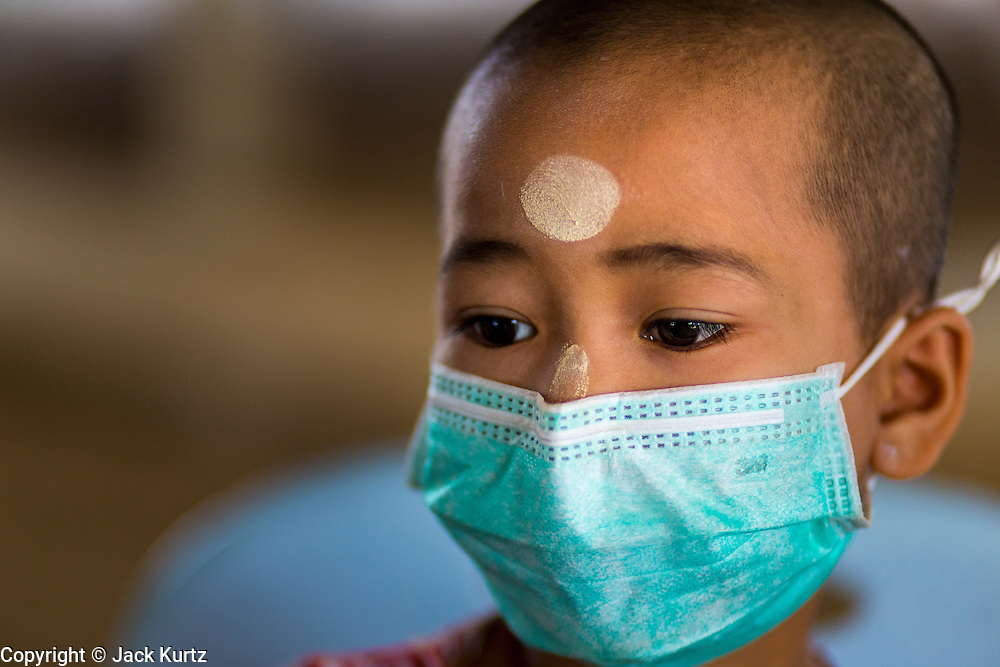 03 MARCH 2104 - MAE KASA, TAK, THAILAND: A girl wearing a breathing mask at the Sanatorium Center for Border Communities in Mae Kasa, about 30 minutes north of Mae Sot, Thailand. The Sanatorium provides treatment and housing for people with tuberculosis in an isolated setting for about 68 patients, all Burmese. The clinic is operated by the Shoklo Malaria Research Unit and works with several other NGOs that assist Burmese people in Thailand. Reforms in Myanmar have alllowed NGOs to operate in Myanmar, as a result many NGOs are shifting resources to operations in Myanmar, leaving Burmese migrants and refugees in Thailand vulnerable. Funding cuts could jeopardize programs at the clinic. TB is a serious health challenge in Burma, which has one of the highest rates of TB in the world. The TB rate in Thailand is ¼ to ⅕ the rate in Burma.        PHOTO BY JACK KURTZ