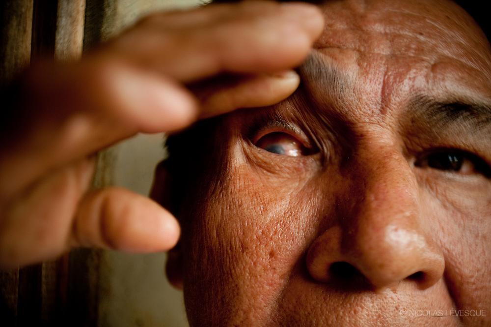 Nicolas Villanueva s'est rentré une épine dans l'oeil et a perdu la vue du même oeil. La compagnie ne lui donne rien. Monocultures d'ananas de la multinationale Del Monte. Buenos Aires, Costa Rica 2010.