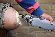 Nederland, Nijmegen, 16-10-2009Bij het UMC Radboud heeft men een nieuwe orthopedische techniek toegepast om een prothese rechtstreeks via een koppeling aan het bot te verbinden, de klikprothese.Foto: Flip Franssen