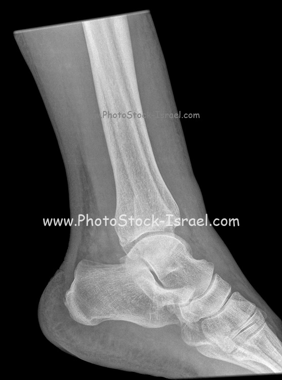 Fracture of the distal tibia and fibula. X-ray of a 57 year old male