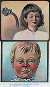 Top: Child with tracheotomy. Bottom: Child withbutterfly Erysipelas. Illustration, 1905.