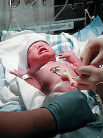 A newborn infant receives its first medical care and monitoring.
