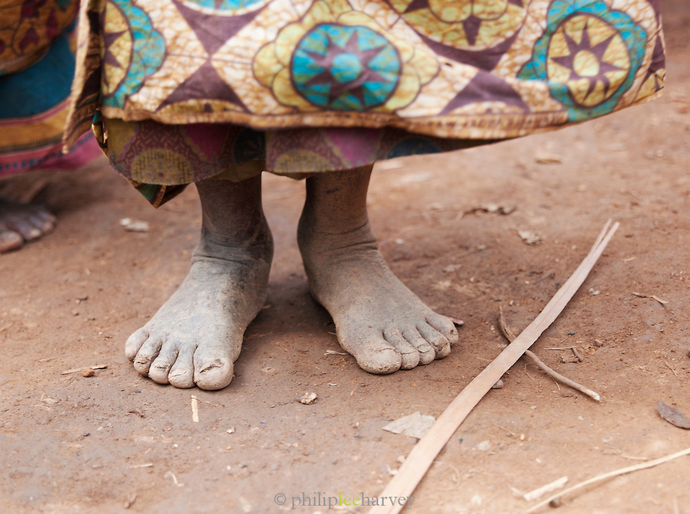 The feet of an older woman of a Batwa tribe. The Batwa are a pygmy people who were the oldest recorded inhabitants of the Great Lakes region of central Africa. South West Uganda