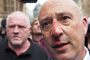 London, UK. Saturday 1st June 2013. Demontrators in Westminster to protest against fascism and the BNP who held a small rally nearby. Clifford le May a member of the BNP from Croydon with a bloodied face after being beaten by anti-fascist protesters.
