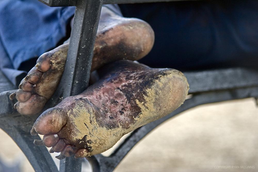 Feet of a homeless man sleeping on a bench in Washington, D.C., 2006.