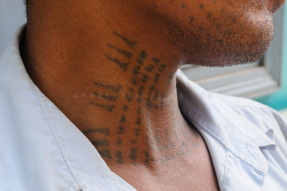 A former soldier shows off tattoos in his neck that protect him from evil. In spite of them, he lost a leg to a landmine. Physical Rehabilitation Center, Siem Reap, Cambodia. Photo © Robert van Sluis