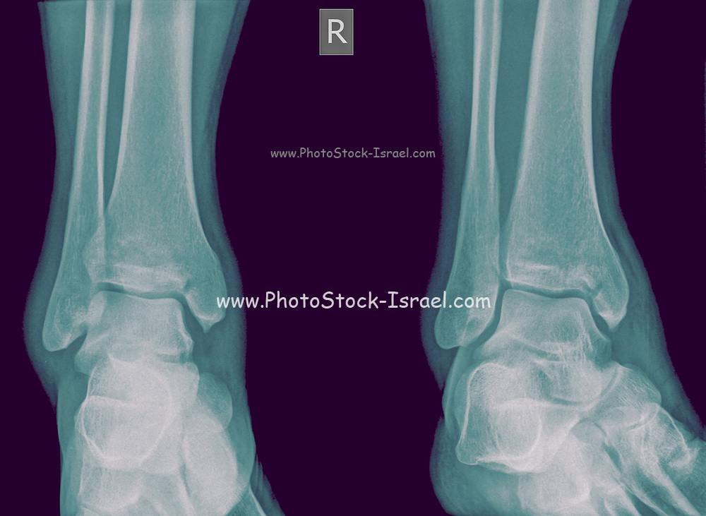 X-ray of an ankle 50 year old male with a fractured tibia. Front view