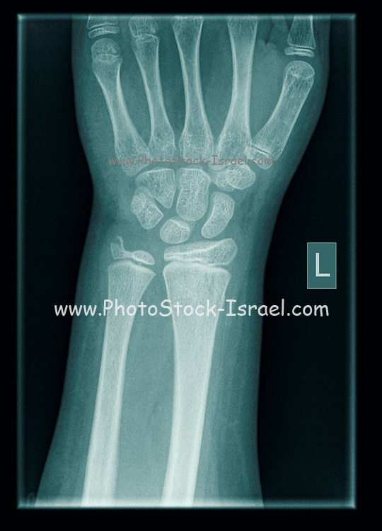 wrist  of a 9 year old male patient with Distal Radius and Ulna Fractures