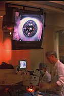 Major eye surgery being performed in a medical office in a shopping mall as seen throught a window so that mall shoopers can see. <br />Photo by Dennis Brack