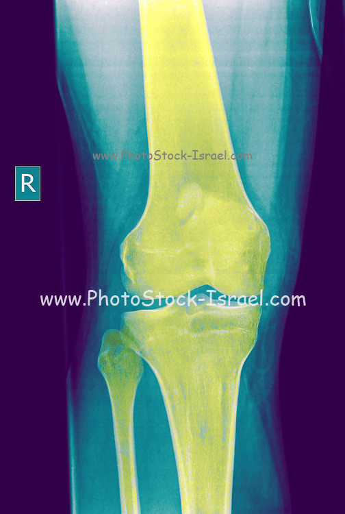 Knee x-ray of a 27 year old male patient front view
