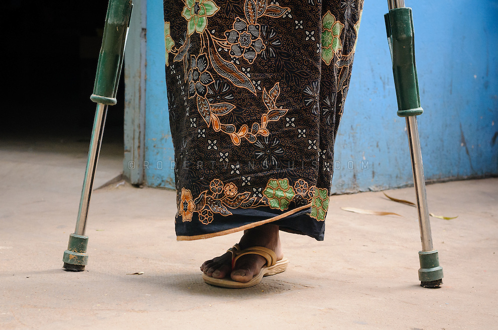 Woman who lost one leg to a landmine is standing with the aid of two crutches. She receives a prosthetic leg at the Physical Rehabilitation Center, Siem Reap, Cambodia. Photo © Robert van Sluis