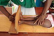 A girl is measured at the Pipeline health center in Monrovia, Montserrado county, Liberia on Monday April 2, 2012.