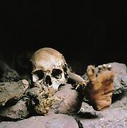 Human Skull And Bones Lalibela, Ethiopia.
