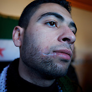 January 20, 2012 - Idleb, Syria: A Free Syria Army fighter shows a bullet wound in his face, inflicted by Syrian Army snipper shots during heavy combat in Taftanaz.
