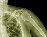 X-ray of a left shoulder of an 89 year old male patient