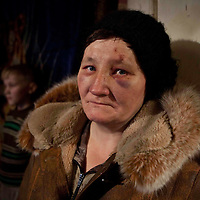 """A resettled woman from the exclusion zone around Chernobyl , in her home north west of Minsk where she bears the scars of """"walking into a tree branch"""".<br /> Chernobyl's human costs are widespread affecting about seven million people.A generation later children are being born with birth defects ,heart problems and thyroid cancer.The crippled economy of Belarus has led to poverty, social problems and domestic abuse.<br /> Photograph by Eamon Ward"""