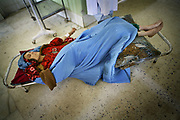 An emergency patient from Argu district, who traveled four hours by car, is being treated on the floor of the maternity ward at Faizabad Provincial Hospital in Badakshan province, Afghanistan, Friday, May 11, 2007. Faizabad Hospital's maternity unit has the most advanced facility in Badakshan. However, it also suffers from lack of facilities and staff especially female doctors. Afghanistan has the second highest maternal mortality rate in the world only after Sierra Leone. An astonishing number of 25,000 women die from obstetric causes per year, or 1 woman dies every 27 minutes. A UN report released in 2000 indicates that the national MMR in Afghanistan was 1,900 per 100,000 live births, whereas it was 17 in the United States. Ragh district in Badakshan province showed the highest mortality risk ever recorded in human history, with 64% - more than half of women - of reproductive age died during 1999 and 2002. The causes of deaths were analyzed mainly in two parts: direct and indirect. Direct causes include haemorrhage, obstructed labour, cardiomyopathy, sepsis, obstetric embolism, and pregrancy-induced hypertension; and the indirect causes were tuberculosis, malaria, and obstetric tetanus. Geographical and economical factors also contribute to high mortality in a place like Badakshan where most people have limited access to transportation thus making it harder for women to reach proper health care centers.
