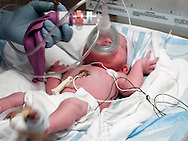 A newborn infant receives respiration support during it's first minutes of life.