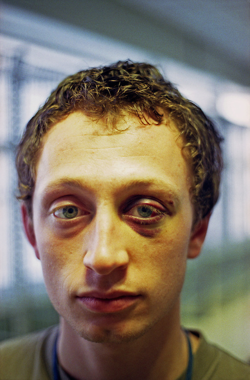 A young man sports a black eye - sustained playing football [soccer]