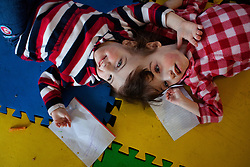 Four-year-old craniopagus twins Tatiana and Krista Hogan play in their home in Vernon, British Columbia, Canada, Feb. 26, 2011. The twins, born Oct. 25, 2006 to parents Felicia Simms and Brendan Hogan, are connected at the head and share a brain. Neurologists say the twins are the only such set that have a common neurological connection.