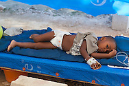 Young boy receiving treatment at a cholera treatment clinic run by Samaritan's Purse in Cabaret. Samaritan's Purse clinic in Cabaret has 80 beds. Cholera clincis run by NGO's are the main source of care for patients with cholera.