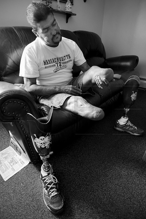 Carlos massages the stumps of his legs in an effort to promote circulation after wearing his prosthetic legs for the entire day. Carlos Raposa, 49, has lived with diabetes since he was 21. Mr. Raposa had both legs amputated from the knees down due to complications from the disease. Mr Raposa lives in Fall River and visits his mother regularly who lives close by. She cooks for him and helps him deal with the cripling condition he has been dealing with.  As his condition has worstened over the years Carlos has had greater difficulty dealing with his condition.  Increasingly, Carlos has fallen greater into depression and has turned to smoking and drinking to deal with it.  What used to be monthly visits to the hospital has turned into weekly excursions with ever longer stays in hospital.  Family members have become ever more worried about Carlos' drop in weight and his inability to move on his own any longer.  For someone who was an athletic figure, Carlos has become a shadow of his former self.