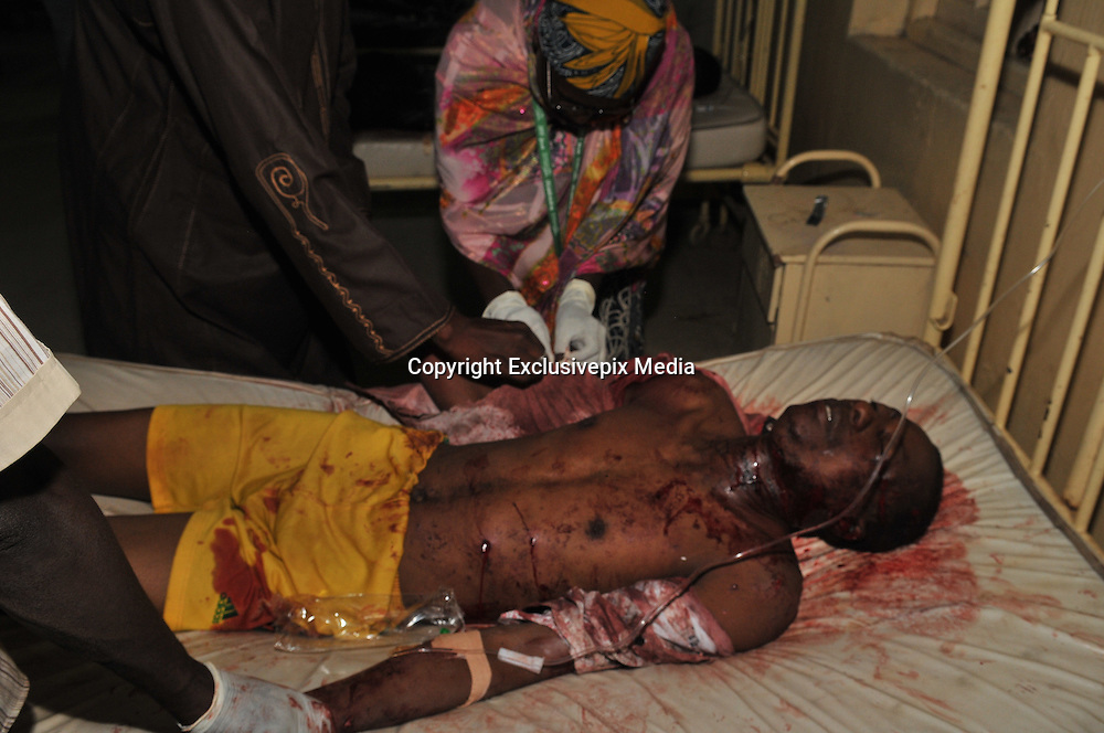 Nov. 18, 2015 - Kano, Nigeria - <br /> <br /> Female Suicide Bombers Strike Nigeria<br /> <br /> A victim of the phone market bombing receiving treatment at the Murtala Specialist hospital. Two female suicide bombers launched a deadly attack that killed an estimated 15 people at a packed mobile phone market in Kano.<br /> ©Exclusivepix Media