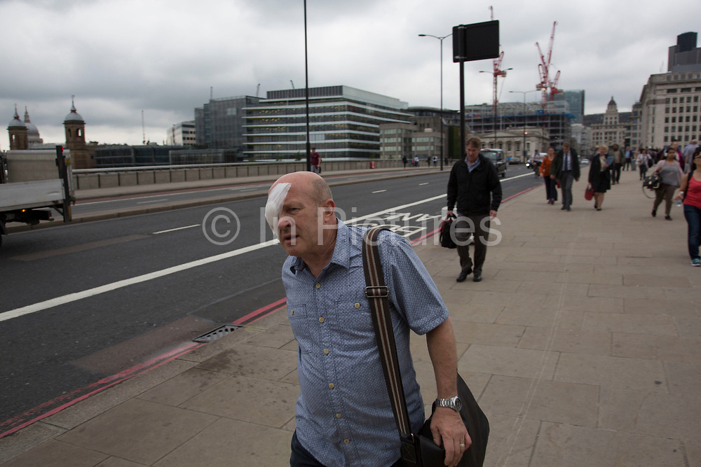 Man with an eye patch covering one of his eyes crosses London Bridge in London, England, United Kingdom.