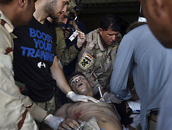 July 13, 2017 - Mosul, Iraq - A severely wounded Iraqi Army soldier is given emergency medical care at a trauma site with Global Response Management team amid ruins of the Old City. The battle with ISIS continues in a small part of West Mosul even though it was declared liberated days ago.  Injuries from suicide bombers, grenades and snipers continue as ISIS fighters use tunnels to continue the fierce conflict. (Credit Image: © Carol Guzy via ZUMA Wire)