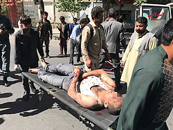 May 31, 2017 - Kabul, Afghanistan - An injured man is being transferred to hospital in Kabul, Afghanistan. A powerful blast rocked a diplomatic district in the central part of Afghanistan's capital of Kabul on Wednesday morning killing at least 40 people and injuring 300 others. (Credit Image: © Rahmat Alizadah/Xinhua via ZUMA Wire)