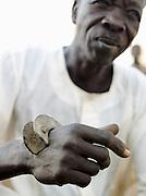 A fighting braclet on the wrist of a Nuba tribesman. Bracelet fighting is now banned in Sudan. Nyaro village, Kordofan region, Sudan