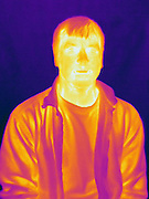 A Thermogram of a man.  This image is part of a series and has a corresponding visible light image.  The different colors represent different temperatures on the object. The lightest colors are the hottest temperatures, while the darker colors represent a cooler temperature.  Thermography uses special cameras that can detect light in the far-infrared range of the electromagnetic spectrum (900?14,000 nanometers or 0.9?14 µm) and creates an  image of the objects temperature..