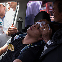 An unconscious protestor injured by the police and overcome by tear gas is taken to hospital.