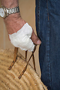 male hand with bandage holding a shopping bag