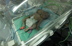 November 23, 2016 - Gaza City, Gaza Strip, Palestinian Territory - One-day-old Palestinian conjoined twin boys lie in an incubator at the nursery at al-Shifa Hospital in Gaza City on November 23, 2016  (Credit Image: © Ashraf Amra/APA Images via ZUMA Wire)