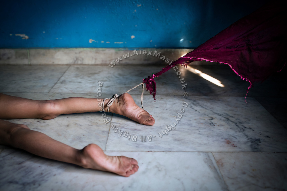Rachi, 7, a disabled girl affected by microcephaly and myoclonic epilepsy, is laying on the floor of the room where she is relegated to during the day with a cord to her ankle, her mother Jyoti Yadav, 34, a '1984 Gas Survivor', use to keep her from wandering off on her own, and being at risk of abuse and danger, while inside their home near Saifiya College, in Bhopal, Madhya Pradesh, central India.
