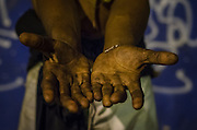 Crackland near Manguinhos shantytown, Rio de Janeiro. A crack dependent shows his hands branded by the life on streets.
