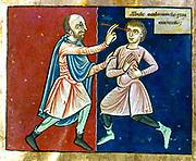 Surgeon operating on an man's eye. 12th century English manuscript.