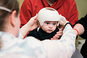 Lincoln and Major Lescault during Craniocap fittings with Molly Linquist in Saint Paul, Minnesota on Friday, April 3, 2020.