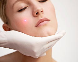 Close up of a young woman receiving laser treatment on her face