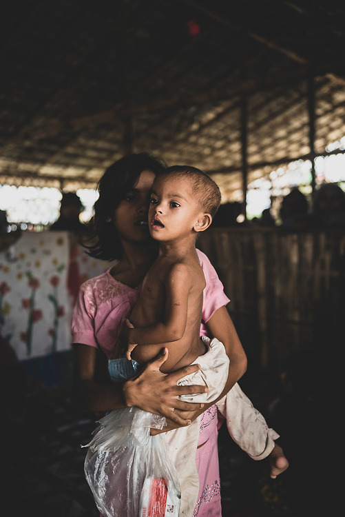 Jamtoli Refugee Camp, Bangladesh - October 30, 2017: Noiuma, 10, holds her sister Sabita, 3, at a clinic for severe acute malnutrition in Jamtoli refugee camp, Bangladesh. They are among the hundreds of thousands of Rohingya who fled Myanmar in 2017.