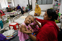 July 24, 2017 - Dhaka, Bangladesh - Bangladeshi conjoined baby girls twins Rabia and Rukia admitted in Hospital at Dhaka on July 24, 2017.Delivered by caesarean at the PDC Clinic in Pabna, North Bangladesh, on July 16 at last year, conjoined twins Rabia and Rukia were born joined at the head. Mum Taslima Khatun Uno and husband Mohammed Rafiqul Islam didn't learn that the twins were conjoined until after the birth. Doctors are monitoring the twin's health in the coming weeks and assessing if and when surgical separation is possible and what the risks are to the babies lives. The parents, who are both teachers, worry they won't be able to fund the surgery themselves and have made a plea to the Bangladeshi government to financially support the operations. Parents said: Surgery will be costly and it's not possible for us to bear this cost so we are asking the government to help us. (Credit Image: © Mehedi Hasan/NurPhoto via ZUMA Press)
